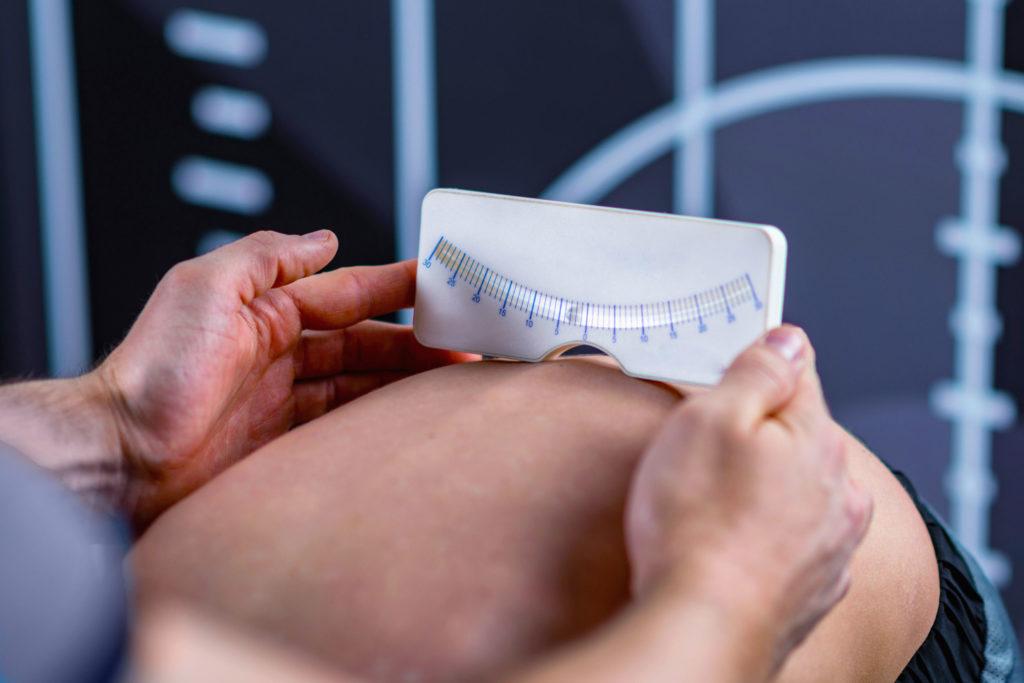 使用Scoliometer測量尺不超過5度都是正常的:亦可以要求孩子彎曲腰部垂低手臂,然後檢查者眼睛與孩子背部齊平,萬一觀察到一側比另一側更高或背部不對稱的情況出現,則應找兒科醫生進行檢查。