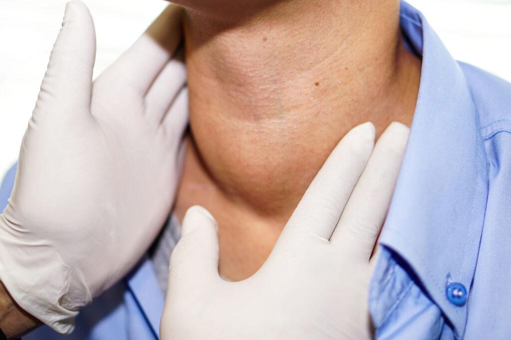 甲狀腺結節否需要切除,視乎體積和影響而定。如果結節體積大至壓住氣管、妨礙吞嚥,或病人覺得影響外觀而造成困擾,就需要考慮切除。