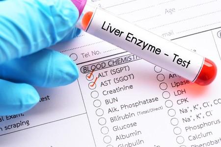 肝酵素,顧名思義,就是肝臟細胞裏的酵素,又稱肝臟酶,主要分谷丙轉氨酶 (ALT 或 SGPT) 及谷草轉氨酶 (AST 或SGOT) 兩種。