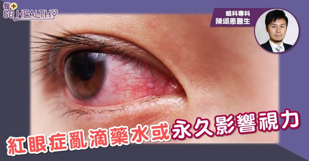 紅眼症亂滴藥水或永久影響視力