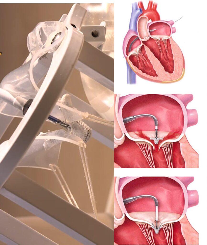 Mitra Clip修補手術是醫生在病人大腿引入導管(一根幼長的軟性管子),將一個「手指尾大小」的金屬夾子MitraClip裝置引導至心臟,再夾住鬆脫的二尖瓣,令其能完全緊閉。