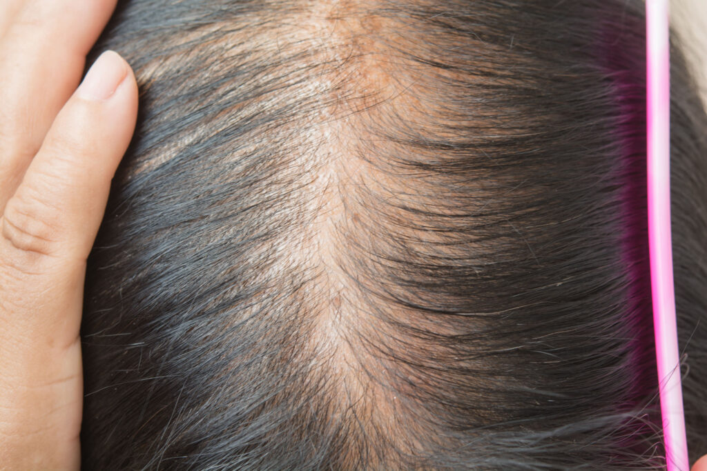 女士脫髮多由頭頂開始,分界位會變得稀薄。