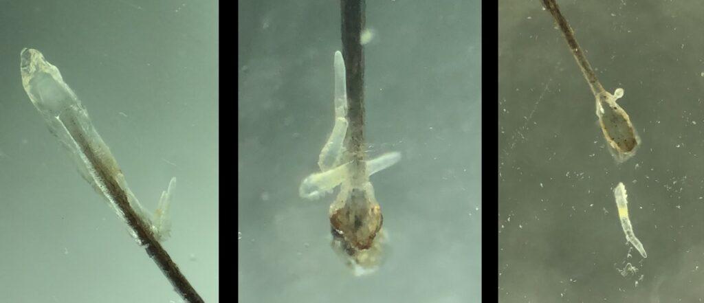 Demodex 顯微鏡下的蠕形螨蟲。