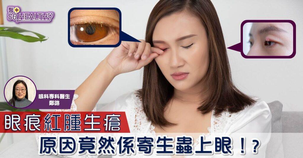 眼痕紅腫生瘡 原因竟然係寄生蟲上眼!