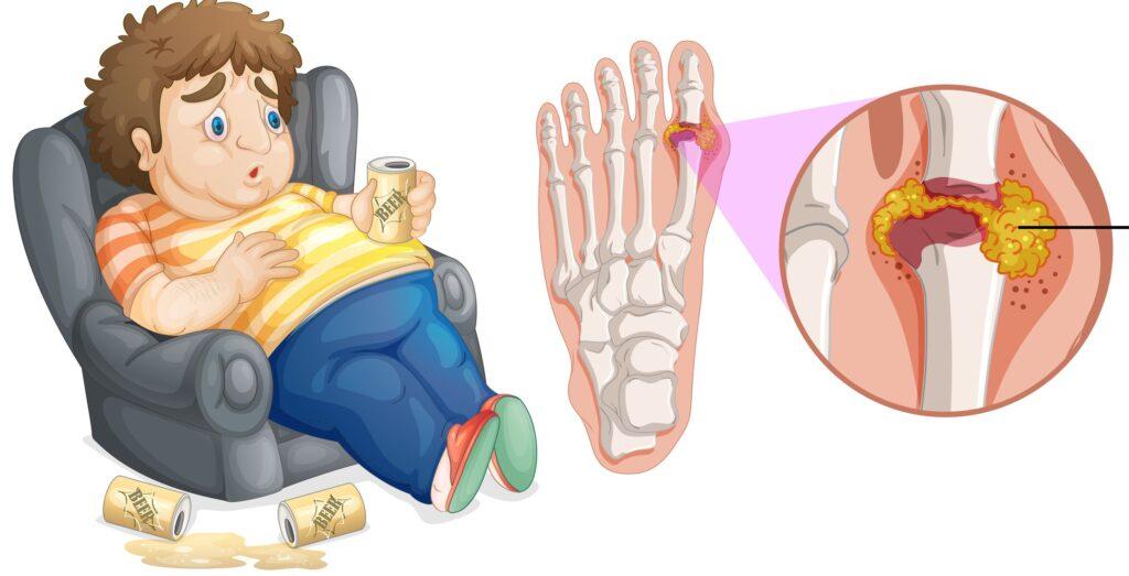 痛風在初期發作時通常影響較遠及體溫較低、尿酸容易沉積的腳趾關節。