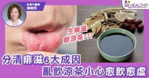 飲涼茶就可以KO痱滋? 小心愈飲愈虛
