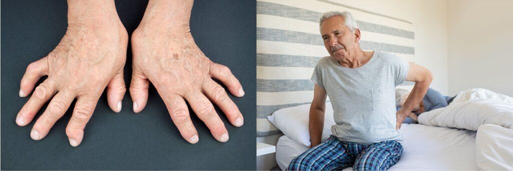 關節畸形可令患者活動受阻;發炎性關節炎患者在起床後半小時內會感到關節僵硬