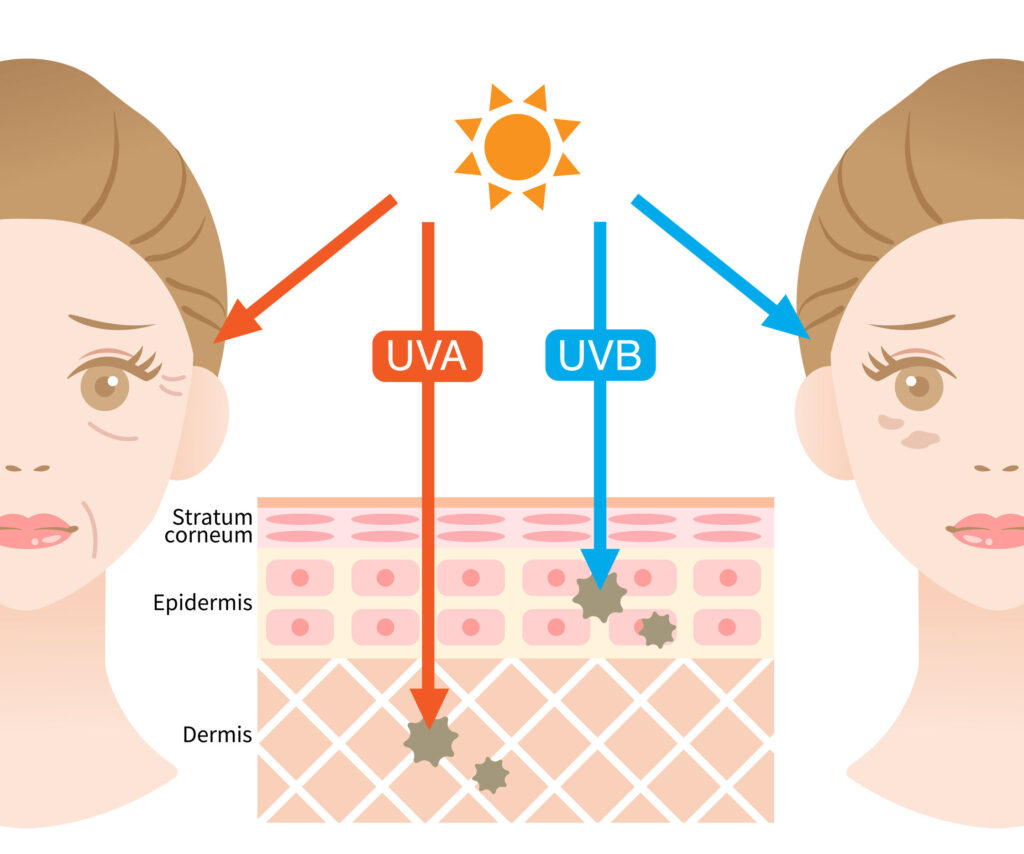 UVA & UVB 分別會曬傷皮膚及導致皮膚變黑、變老及出皺紋。